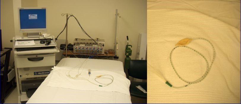 Manometry procedure